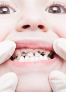 Tooth decay is a chronic childhood disease